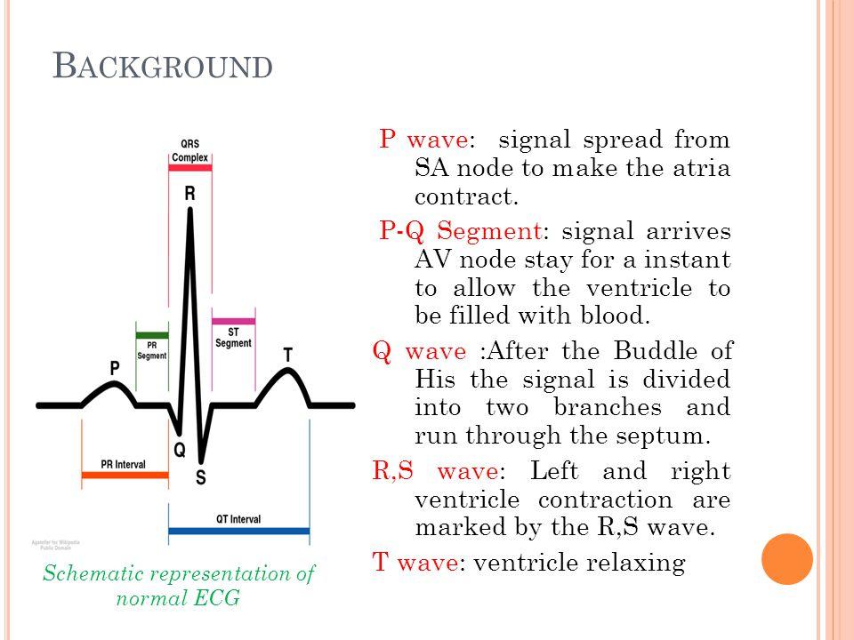 Schematic representation of normal ECG