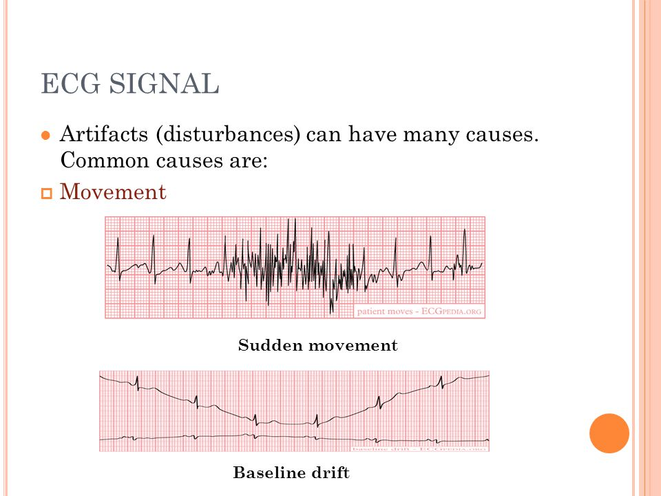 ECG SIGNAL Artifacts (disturbances) can have many causes. Common causes are: Movement. Sudden movement.