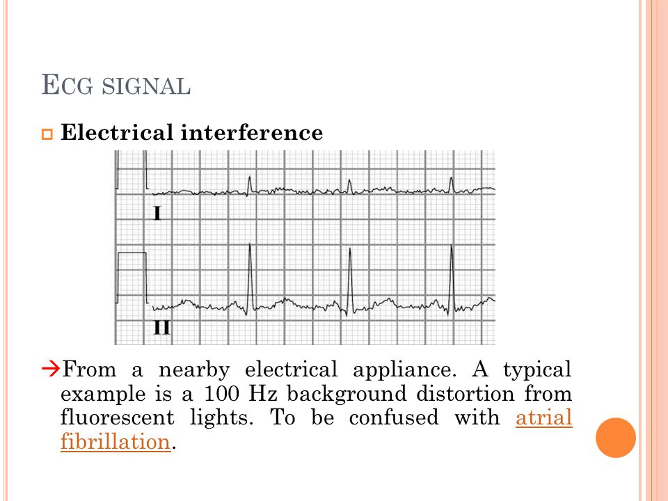Ecg signal Electrical interference