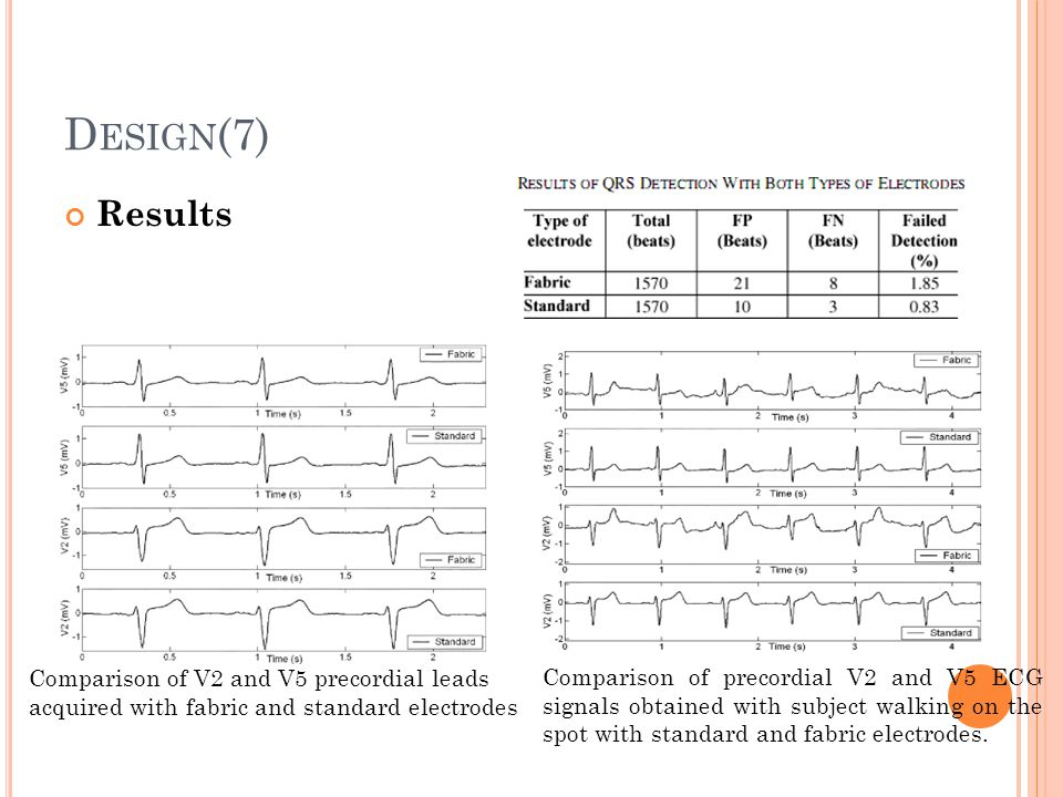 Design(7) Results. Comparison of V2 and V5 precordial leads acquired with fabric and standard electrodes.