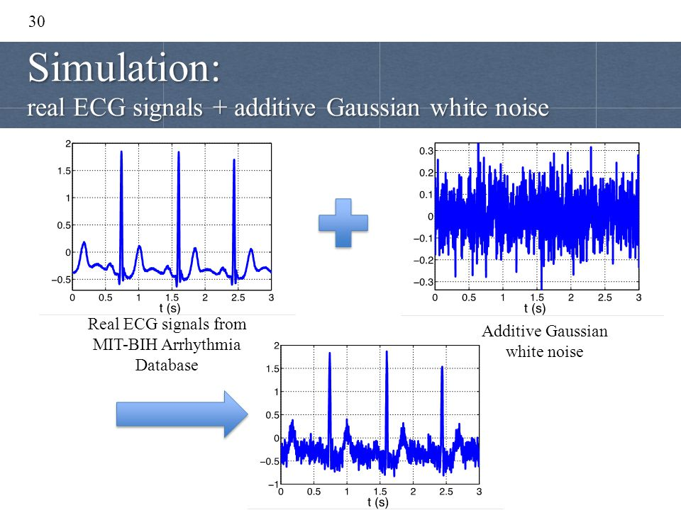 Simulation: real ECG signals + additive Gaussian white noise 30
