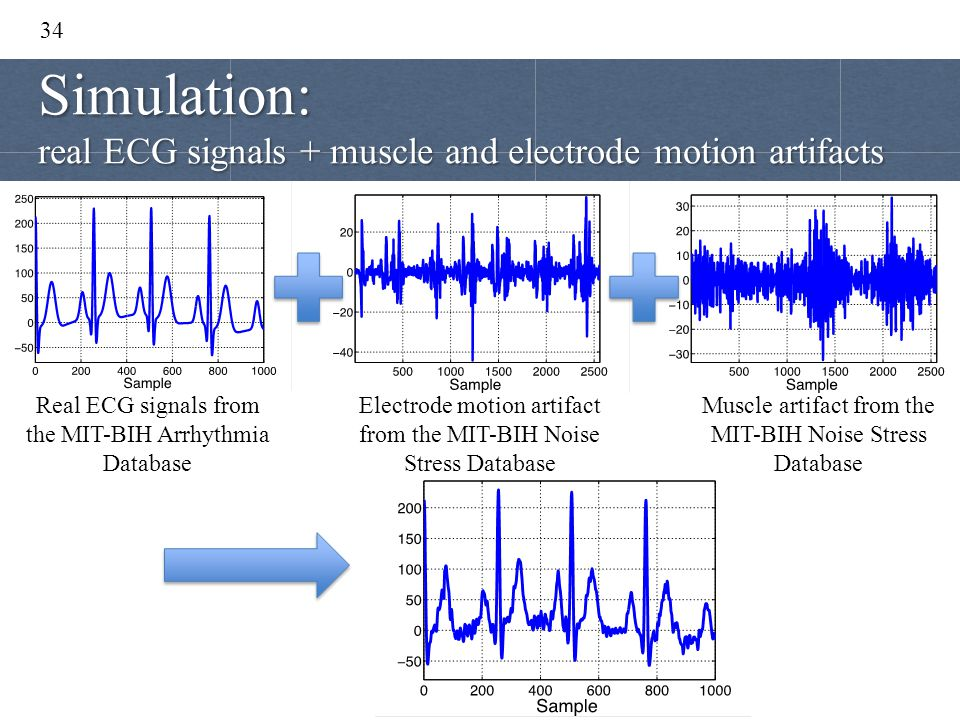 Simulation: real ECG signals + muscle and electrode motion artifacts