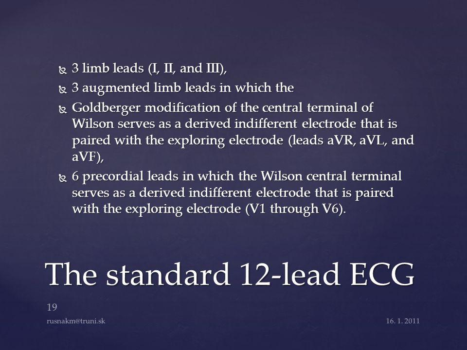 The standard 12-lead ECG 3 limb leads (I, II, and III),