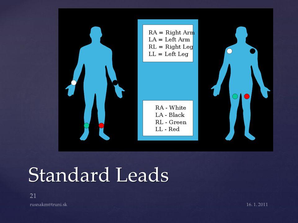 Standard Leads rusnakm@truni.sk 16. 1. 2011