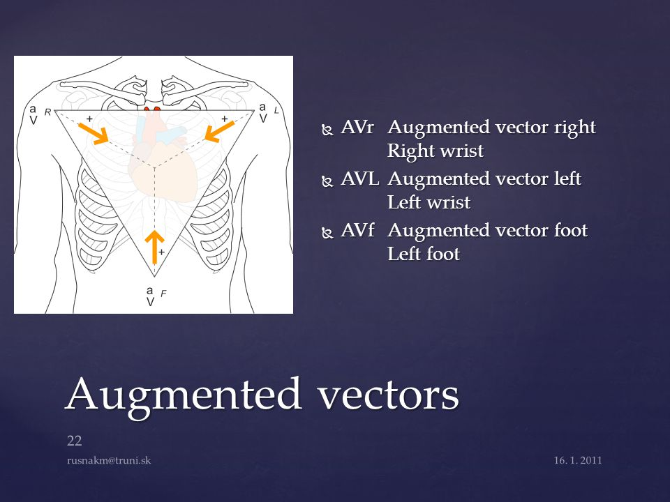 Augmented vectors AVr Augmented vector right Right wrist