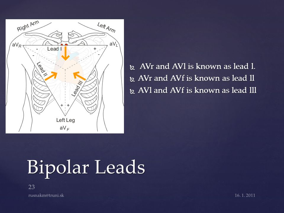 Bipolar Leads AVr and AVl is known as lead l.