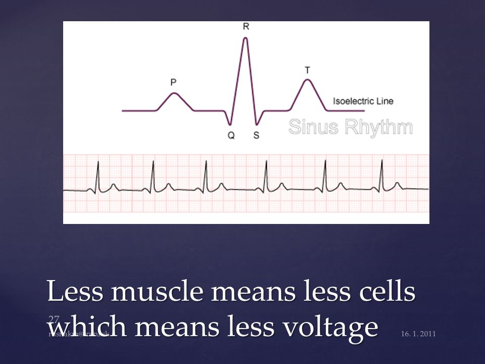 Less muscle means less cells which means less voltage