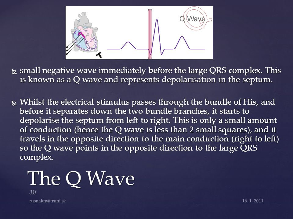 small negative wave immediately before the large QRS complex