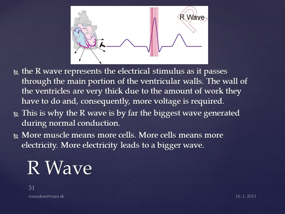 the R wave represents the electrical stimulus as it passes through the main portion of the ventricular walls. The wall of the ventricles are very thick due to the amount of work they have to do and, consequently, more voltage is required.