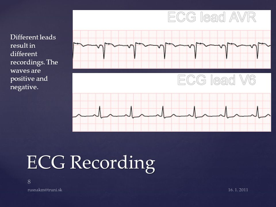 Different leads result in different recordings