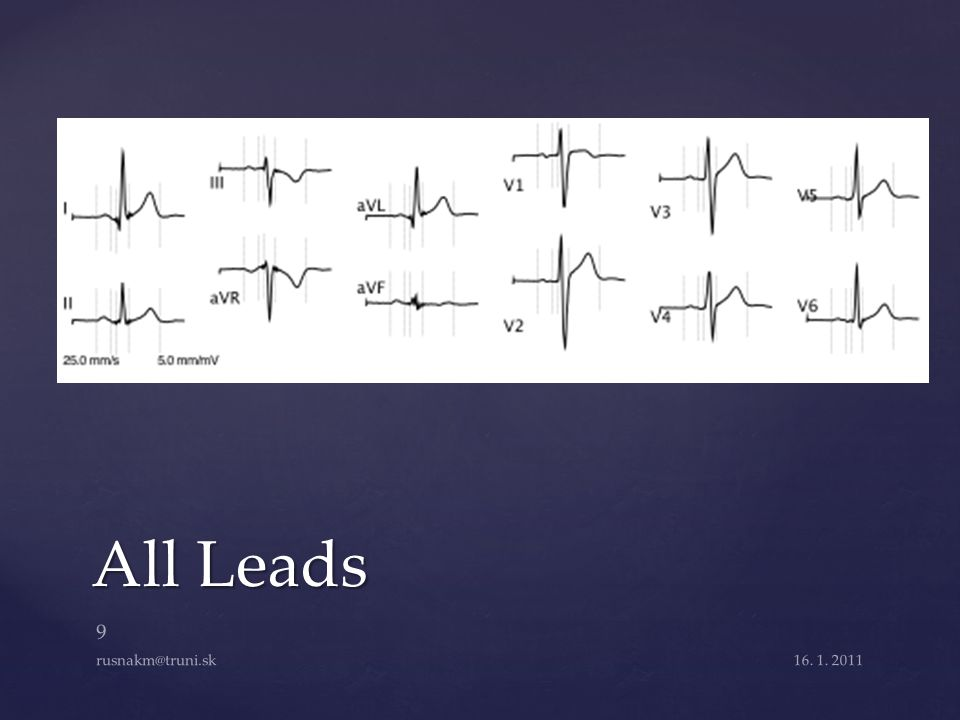 All Leads rusnakm@truni.sk 16. 1. 2011