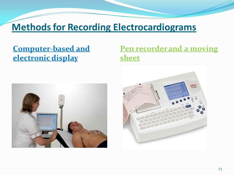 Methods for Recording Electrocardiograms