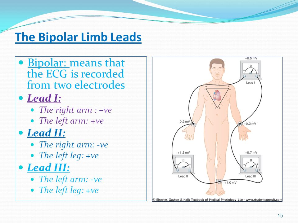 The Bipolar Limb Leads Bipolar: means that the ECG is recorded from two electrodes. Lead I: The right arm : –ve.
