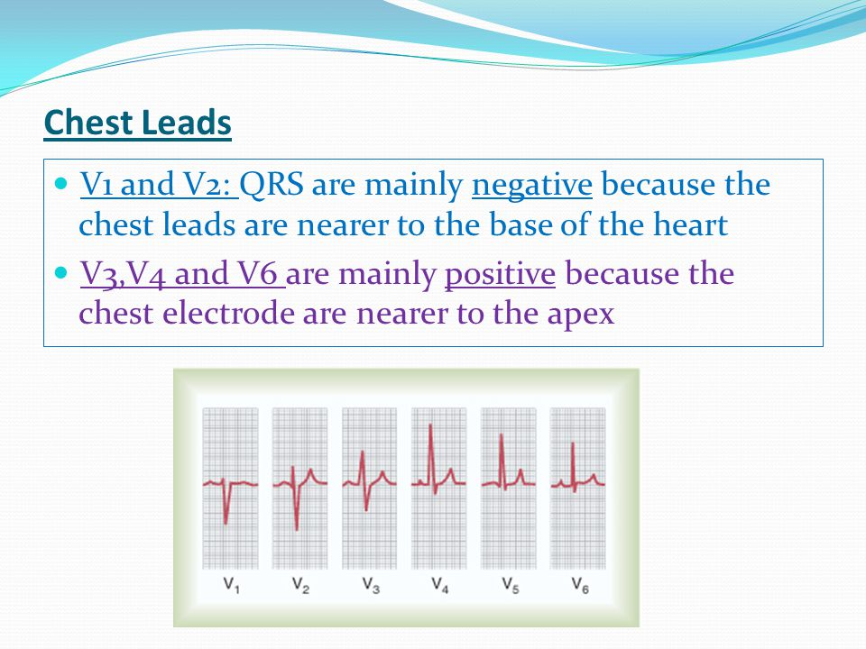 Chest Leads V1 and V2: QRS are mainly negative because the chest leads are nearer to the base of the heart.