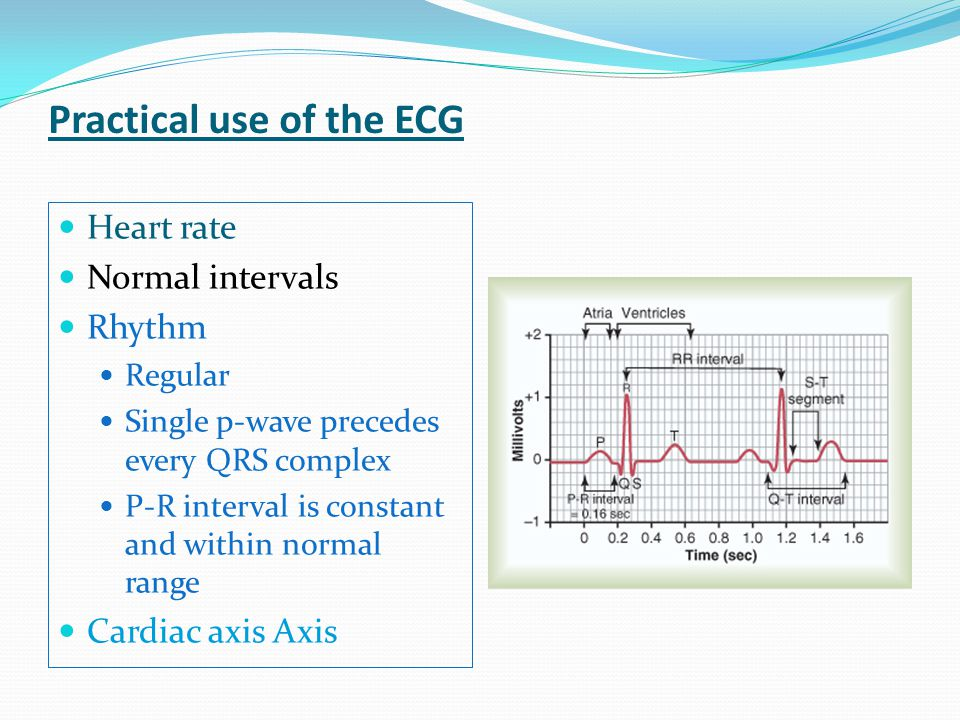 Practical use of the ECG