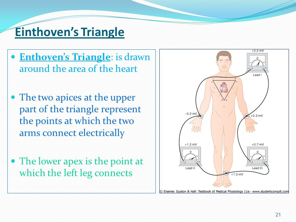 Einthoven's Triangle Enthoven's Triangle: is drawn around the area of the heart.