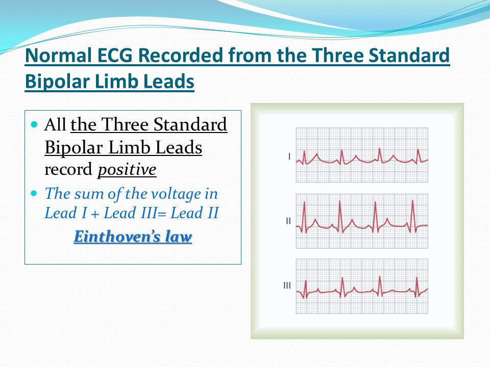 Normal ECG Recorded from the Three Standard Bipolar Limb Leads