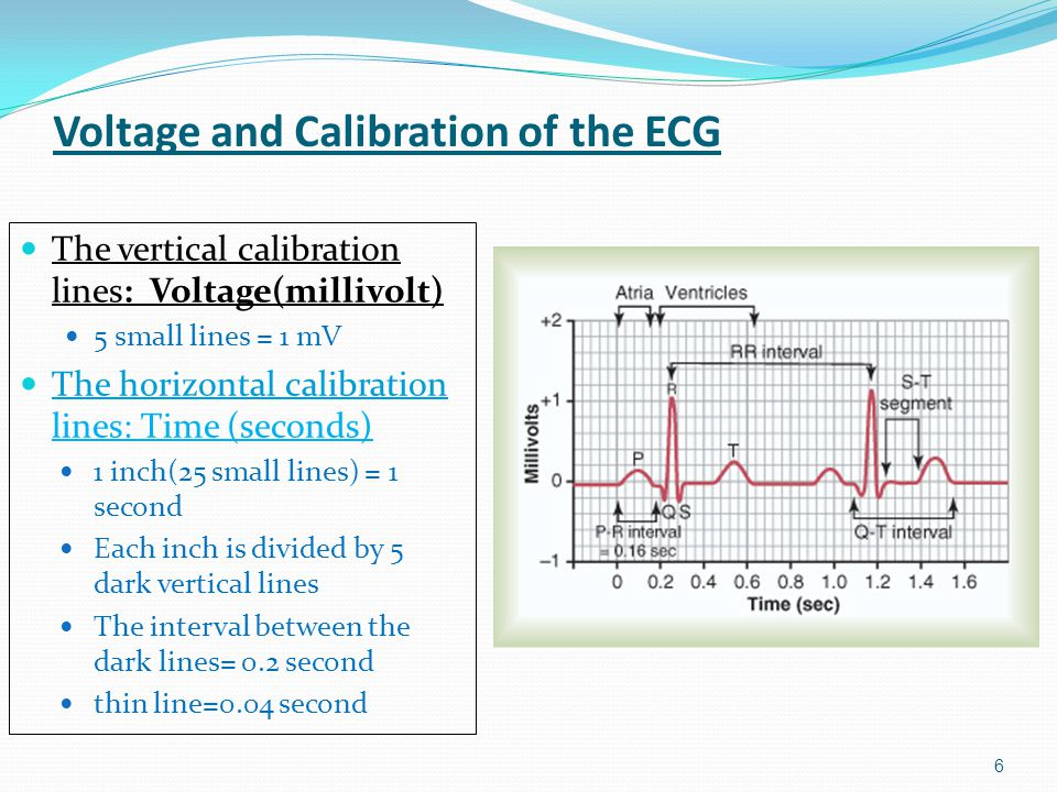 Voltage and Calibration of the ECG