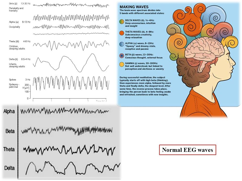 Normal EEG waves