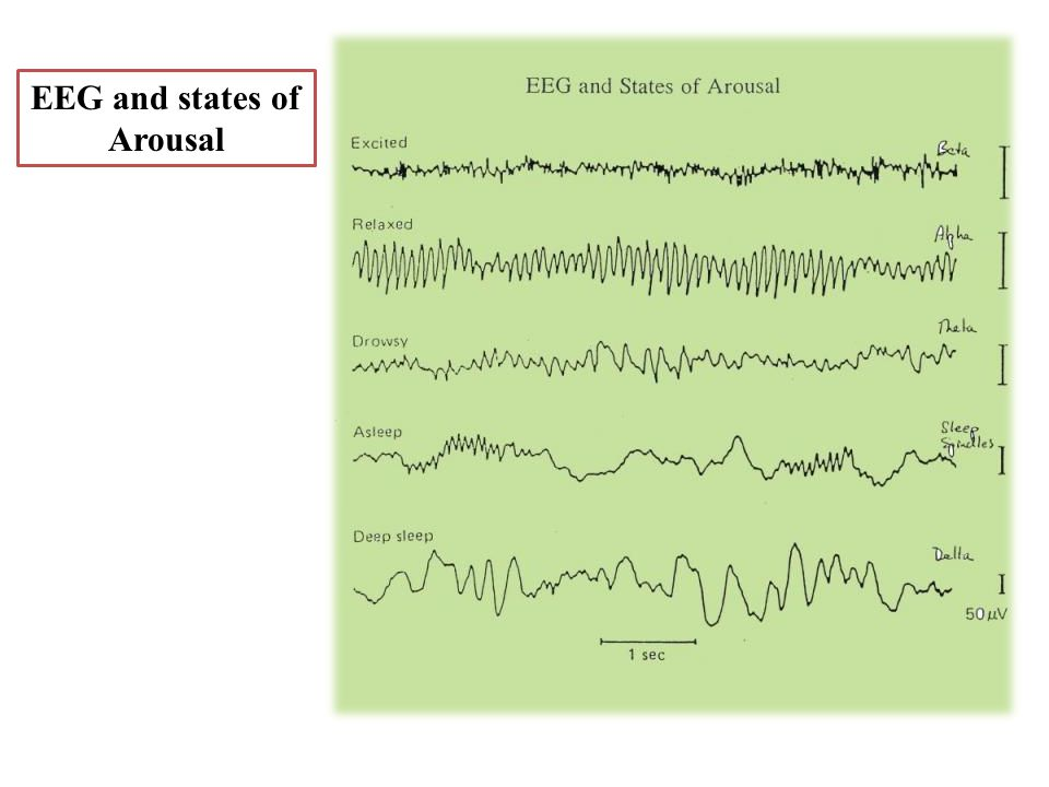 EEG and states of Arousal