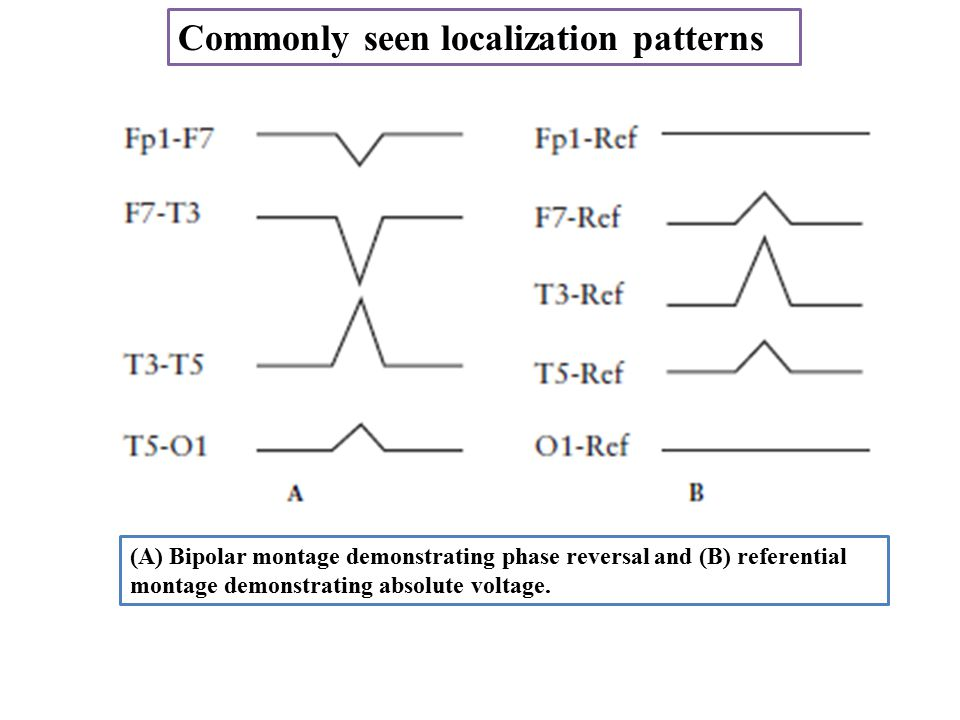 Commonly seen localization patterns