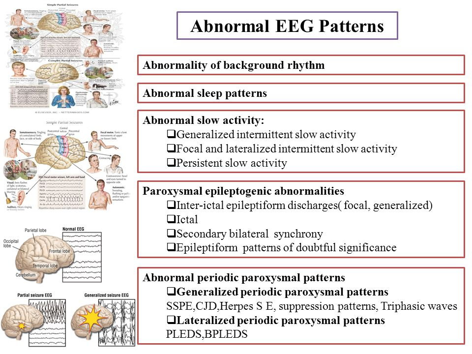 Abnormal EEG Patterns Abnormality of background rhythm