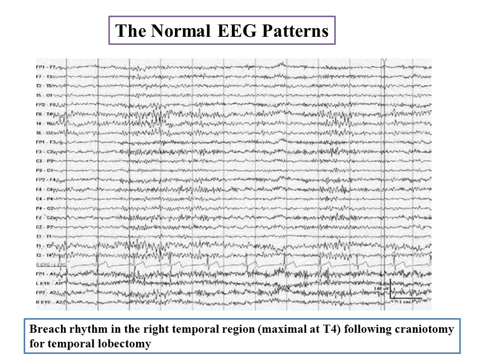The Normal EEG Patterns
