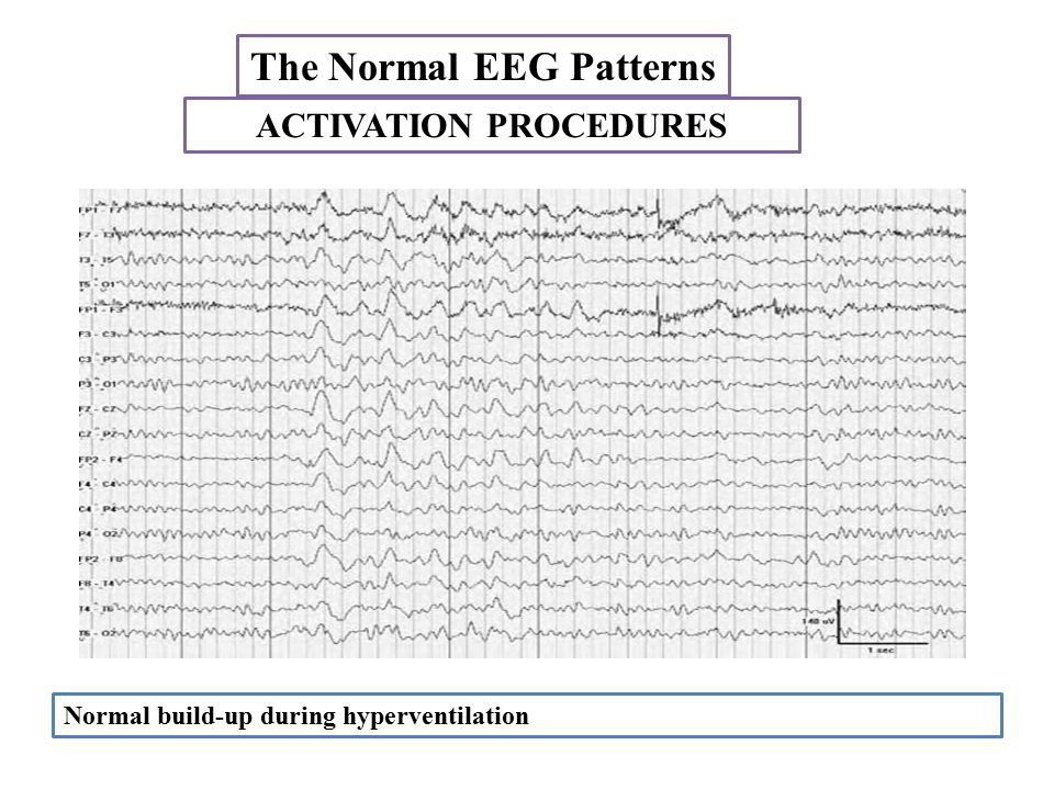 The Normal EEG Patterns ACTIVATION PROCEDURES