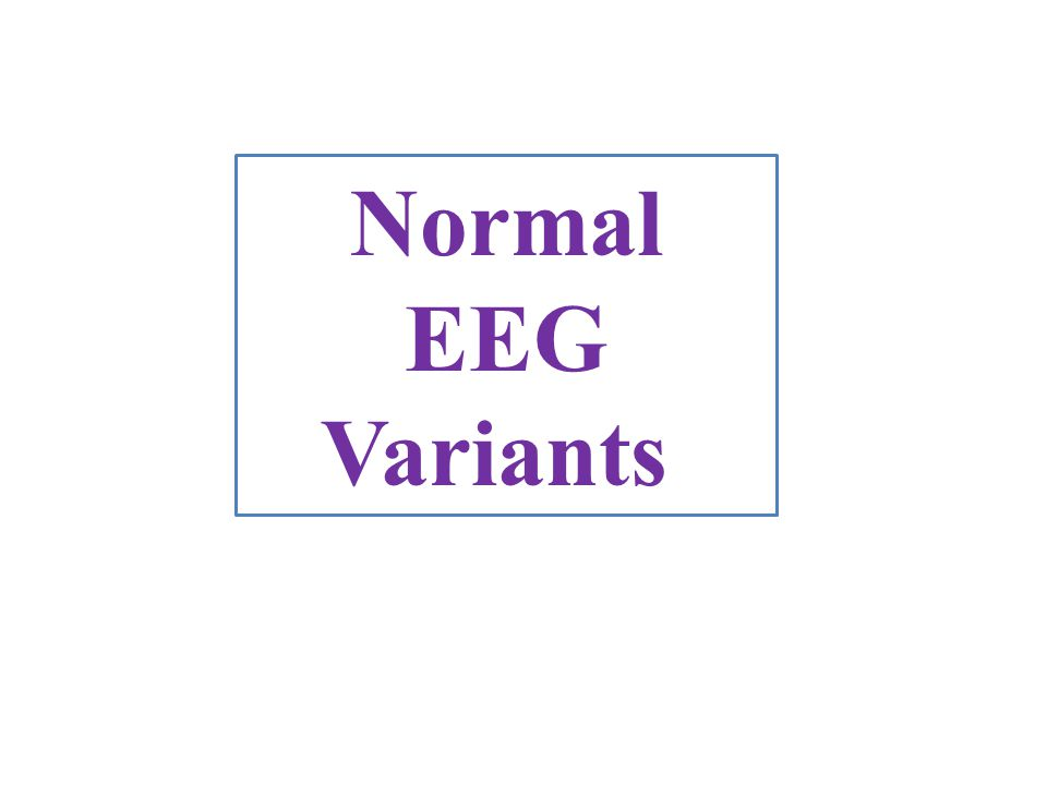 Normal EEG Variants