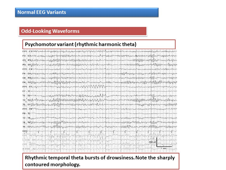 Normal EEG Variants Odd-Looking Waveforms. Psychomotor variant (rhythmic harmonic theta)