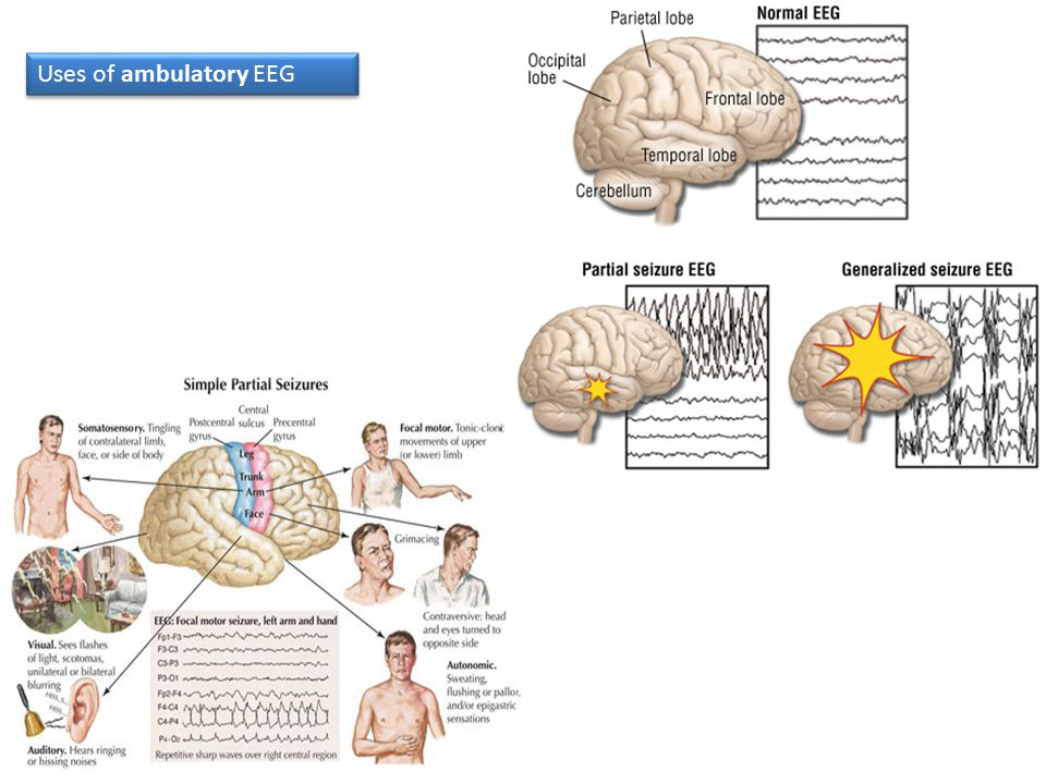 Uses of ambulatory EEG