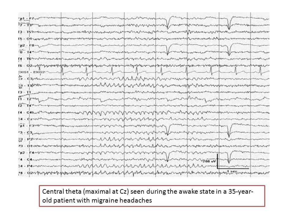 Central theta (maximal at Cz) seen during the awake state in a 35-year-old patient with migraine headaches