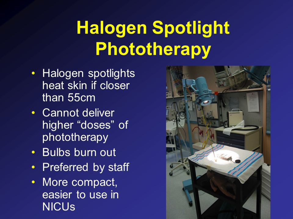 Halogen Spotlight Phototherapy