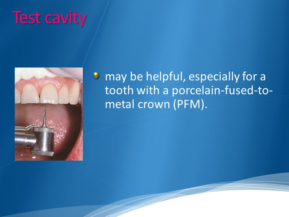Test cavity may be helpful, especially for a tooth with a porcelain-fused-to-metal crown (PFM).