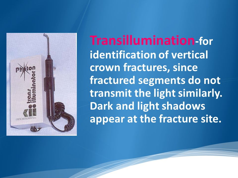 Transillumination-for identification of vertical crown fractures, since fractured segments do not transmit the light similarly.