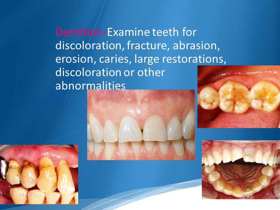 Dentition-Examine teeth for discoloration, fracture, abrasion, erosion, caries, large restorations, discoloration or other abnormalities
