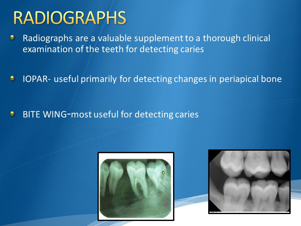 RADIOGRAPHS Radiographs are a valuable supplement to a thorough clinical examination of the teeth for detecting caries.