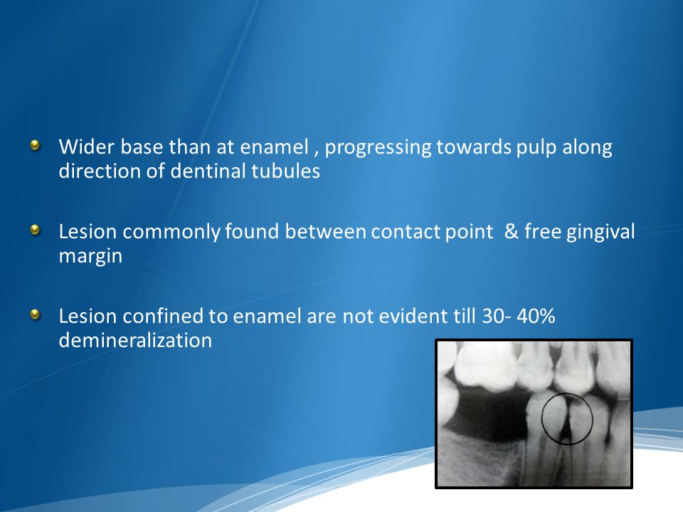 Wider base than at enamel , progressing towards pulp along direction of dentinal tubules