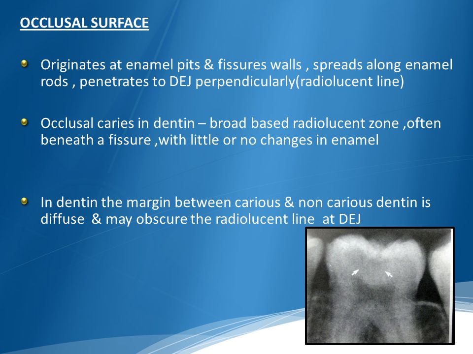 OCCLUSAL SURFACE Originates at enamel pits & fissures walls , spreads along enamel rods , penetrates to DEJ perpendicularly(radiolucent line)
