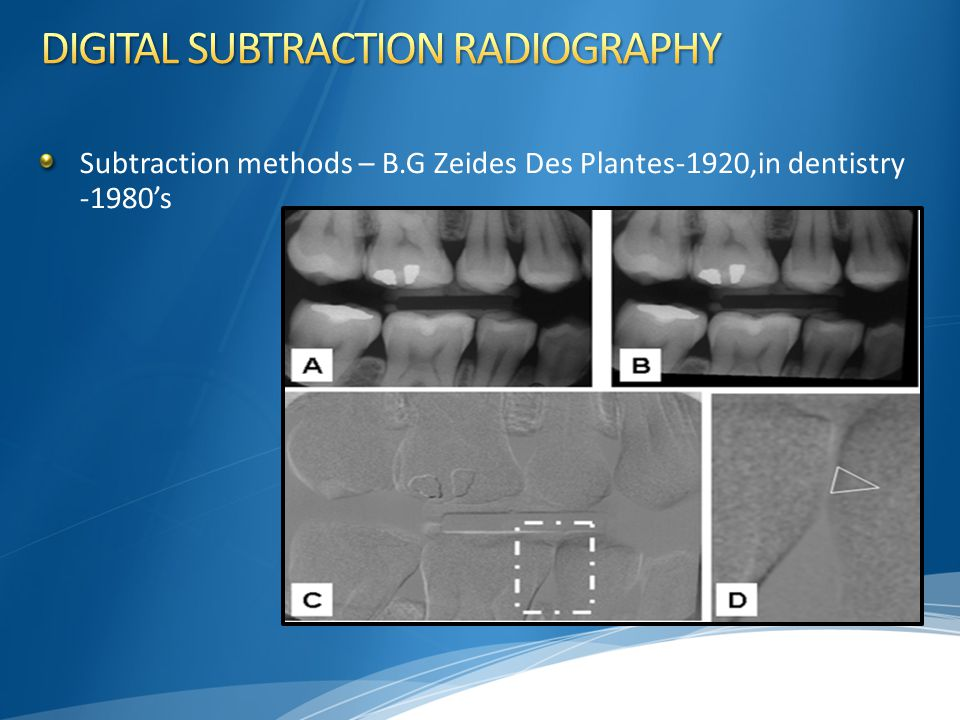 DIGITAL SUBTRACTION RADIOGRAPHY