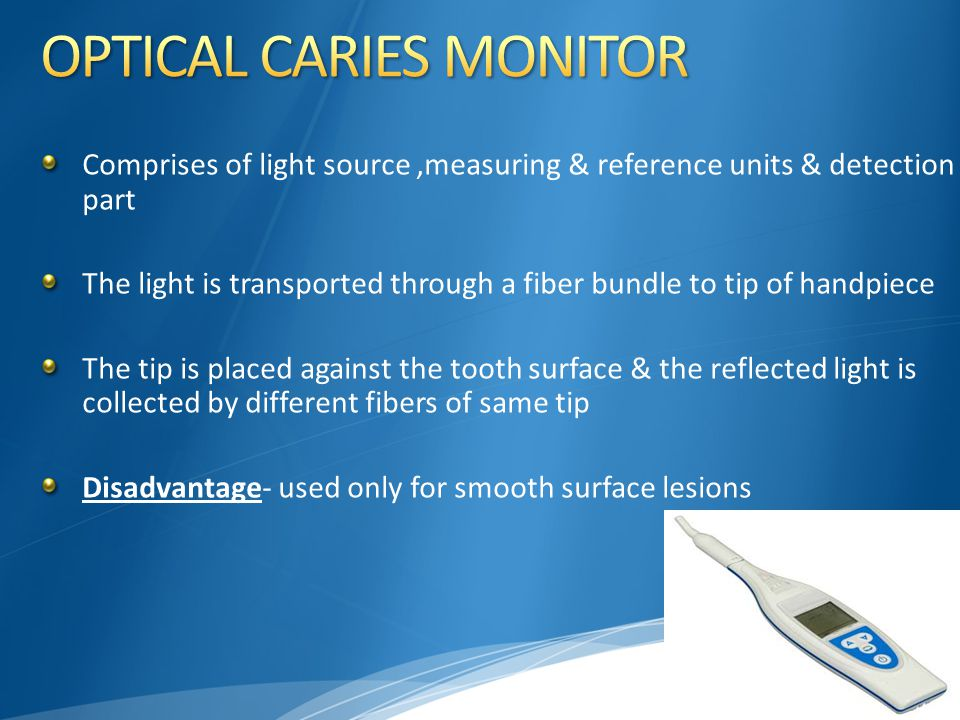 OPTICAL CARIES MONITOR