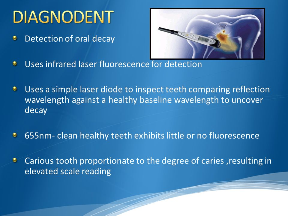 DIAGNODENT Detection of oral decay