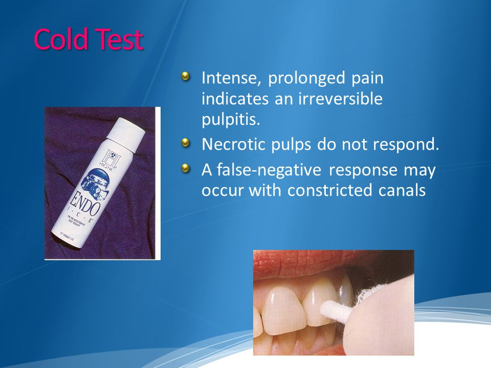 Cold Test Intense, prolonged pain indicates an irreversible pulpitis.