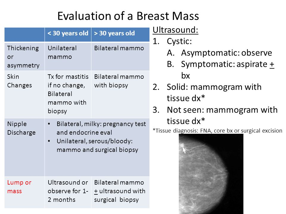 Evaluation of a Breast Mass