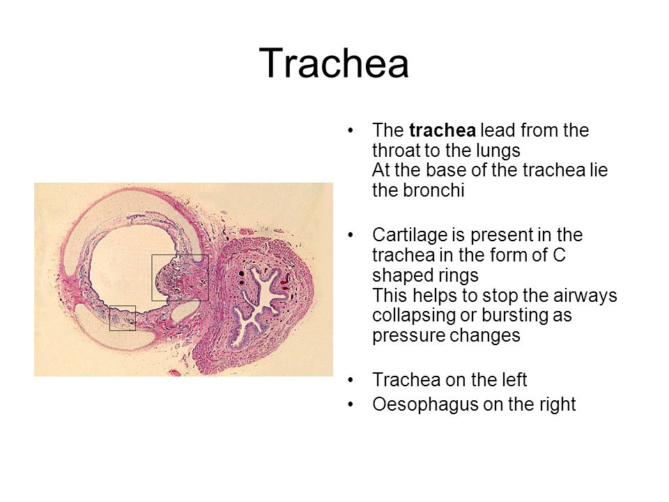 Trachea The trachea lead from the throat to the lungs At the base of the trachea lie the bronchi.