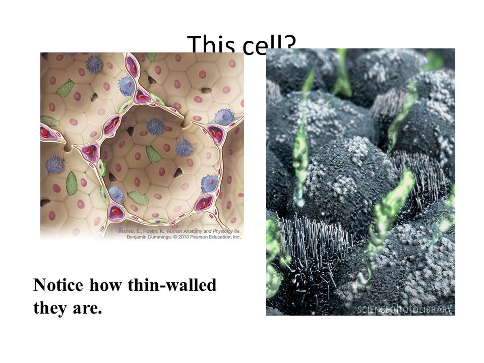 This cell Notice how thin-walled they are.