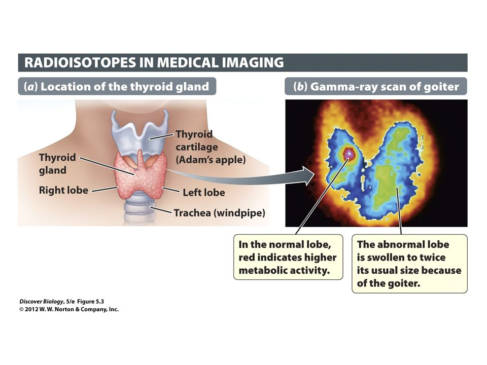 Figure 5.3 Radioisotopes Are Useful in Medical Imaging