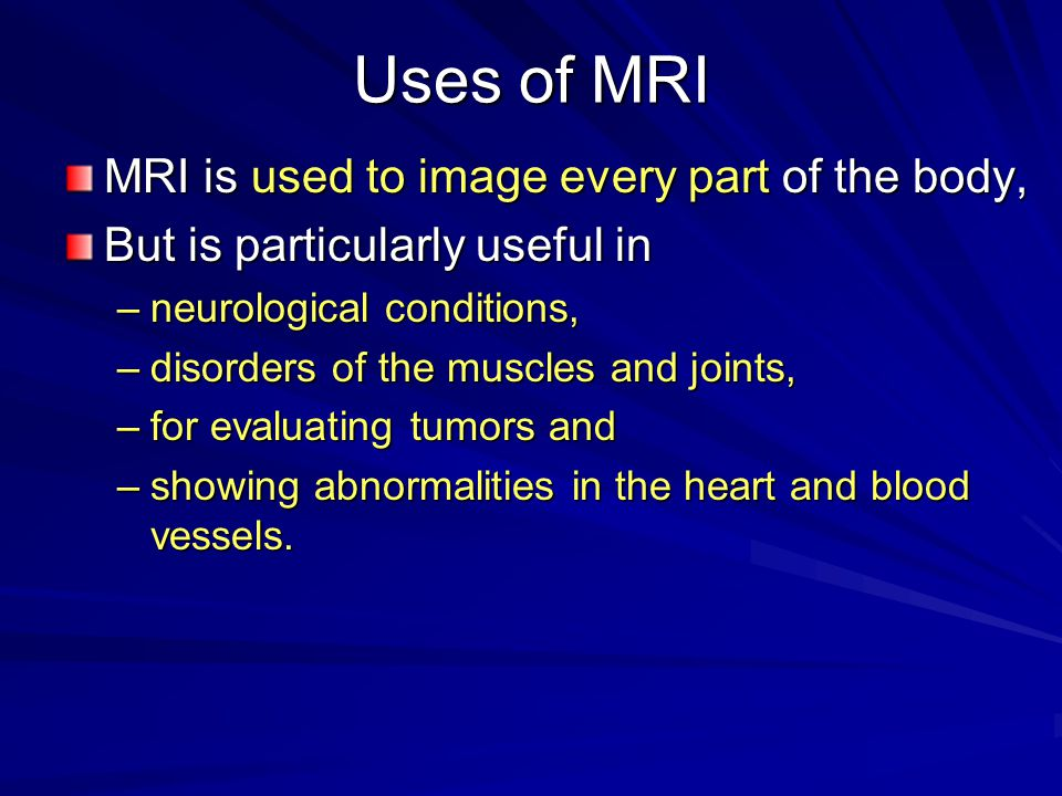 Uses of MRI MRI is used to image every part of the body,