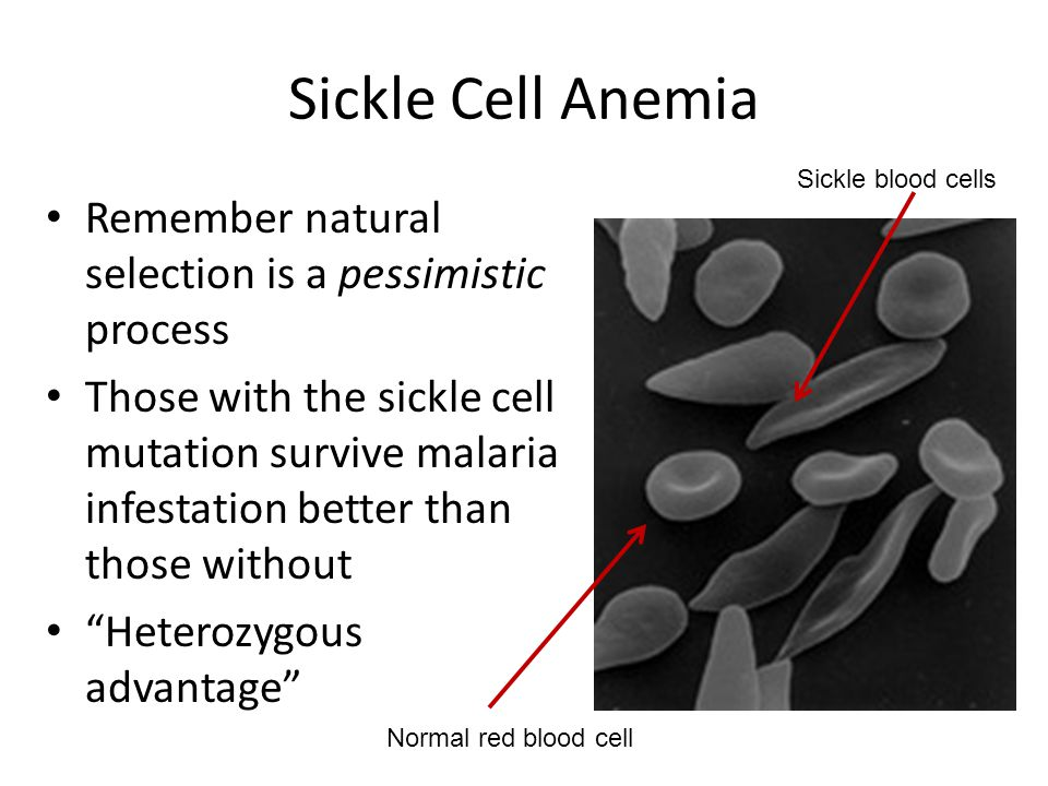 Sickle Cell Anemia Remember natural selection is a pessimistic process