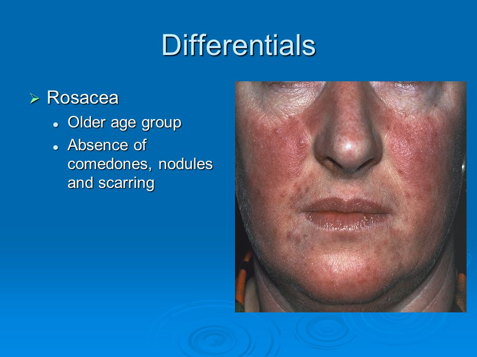 Differentials Rosacea Older age group